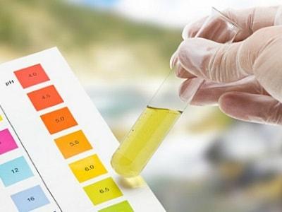 Почему меняется запах мочи у беременных 53