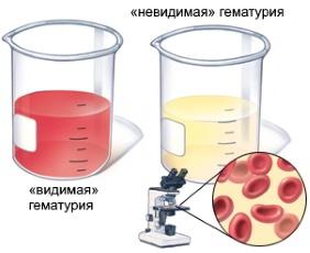 макроскопическая и микроскопическая гематурия