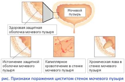 поражение стенок мочевого пузыря циститом
